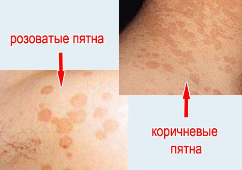 пятна на коже при отрубевидном лишае