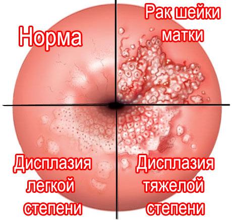 норма, дисплазия и рак шейки матки