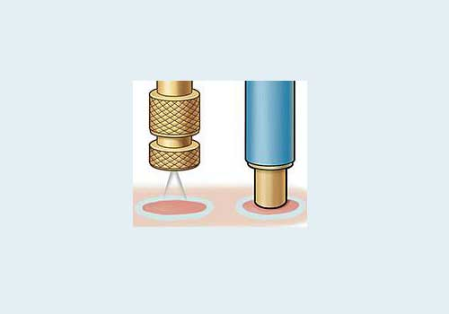 воздействие азота на кожу через криозонд