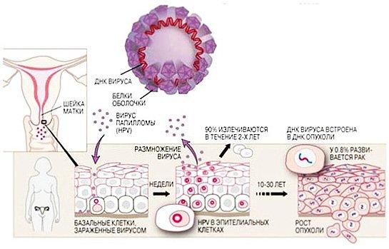 Схема развития вируса папилломы человека