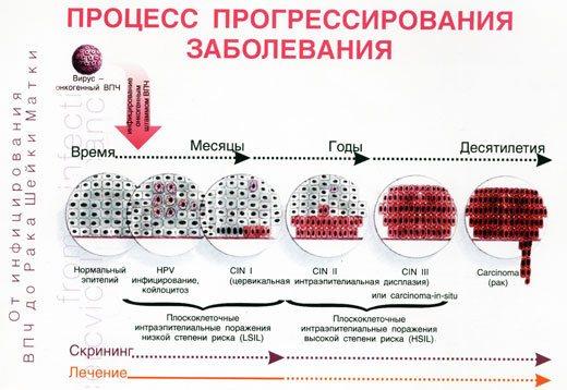 Препараты против вируса папилломы человека