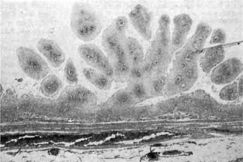 Папиллома под микроскопом