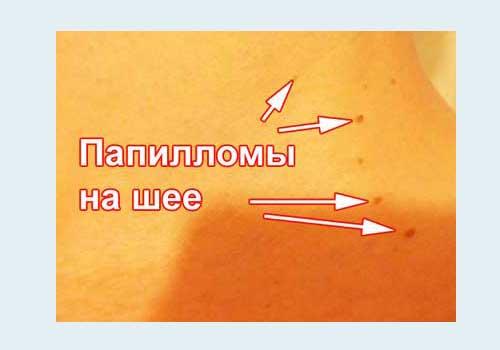 Нитевидные папилломы на шее