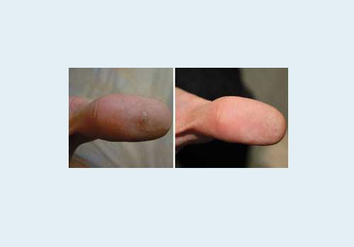 Удаление лазером шипицы на пальце - до и после