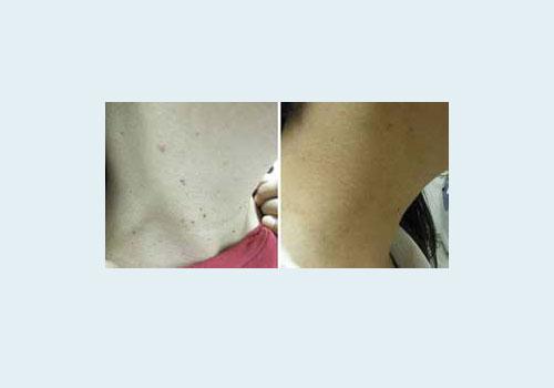 удаление лазером папилломы на шее - фото до и после