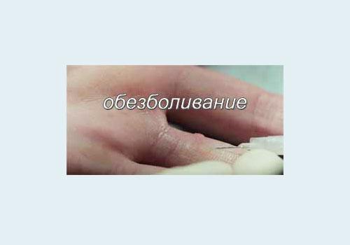 местная анестезия кожи