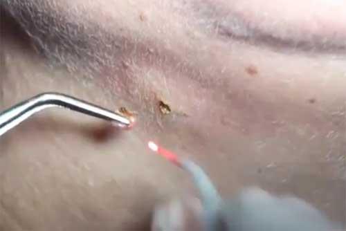 После прижигания бородавки жидким азотом что делать