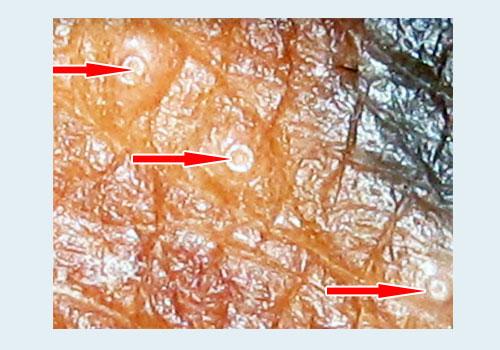 Контагиозный моллюск у детей и взрослых: симптомы, лечение, удаление