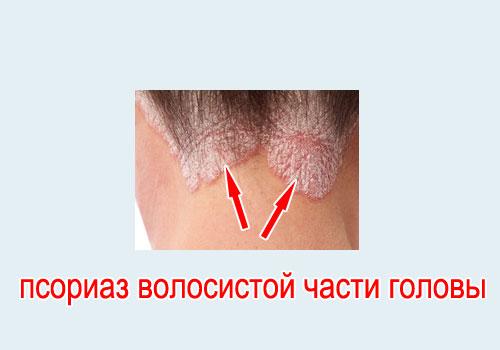 Псориаз волосистой части головы причины симптомы и методы лечения