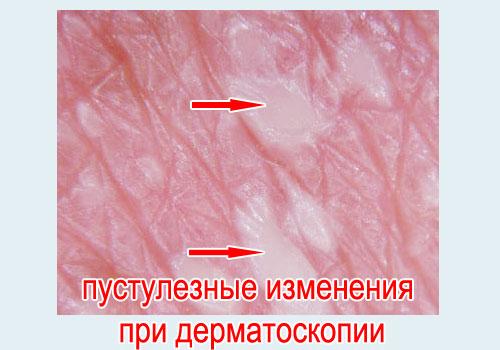 Симптомы экссудативного псориаза фото